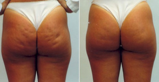 revitol cellulite cream reviews
